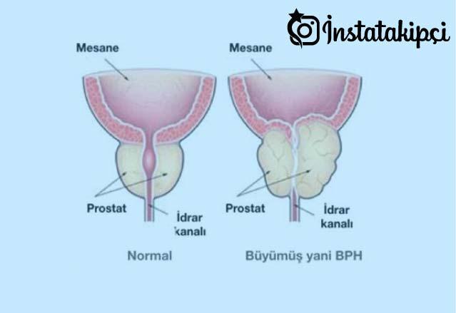 prostat nedir